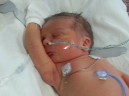 Newborn intubated Freddie